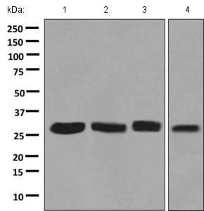 Western blot - Anti-NSMCE1 antibody [EPR9103(B)] (ab139689)