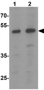 Western blot - Anti-SAMSN1 antibody (ab139735)