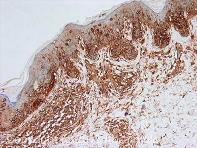 Immunohistochemistry (Formalin/PFA-fixed paraffin-embedded sections) - Anti-Annexin V antibody (ab14196)