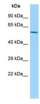 Western blot - Anti-CCT6A antibody (ab140142)