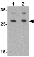 Western blot - Anti-AIG1 antibody (ab140186)