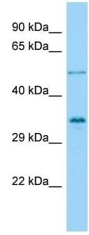 Western blot - Anti-Vgl4 antibody (ab140290)