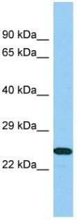 Western blot - Anti-B9D1 antibody - N-terminal (ab140300)