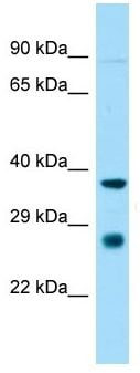 Western blot - Anti-ST8SIA1 antibody (ab140344)