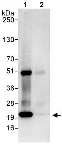 Immunoprecipitation - Anti-Proteasome subunit beta type 2 antibody (ab140426)