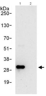 Immunoprecipitation - Anti-Proteasome Inhibitor subunit 1 PI3 1 antibody (ab140497)