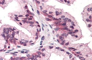 Immunohistochemistry (Formalin/PFA-fixed paraffin-embedded sections) - Anti-ATP1B3 antibody (ab140504)