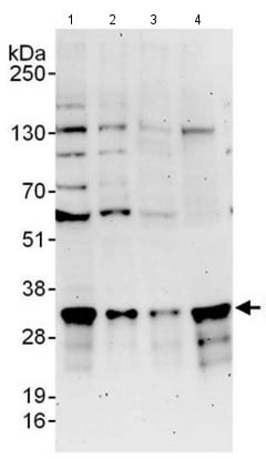 Western blot - Anti-Proteasome Inhibitor subunit 1 PI3 1 antibody (ab140527)