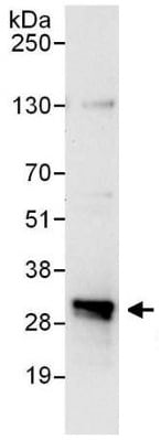 Immunoprecipitation - Anti-Proteasome Inhibitor subunit 1 PI3 1 antibody (ab140527)