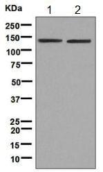 Western blot - Anti-HIV TAT specific factor 1 antibody [EPR9104(B)] (ab140654)