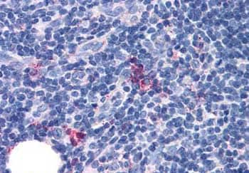 Immunohistochemistry (Formalin/PFA-fixed paraffin-embedded sections) - Anti-GPCR GPR97 antibody - Extracellular domain (ab140801)
