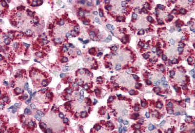 Immunohistochemistry (Formalin/PFA-fixed paraffin-embedded sections) - Anti-STEAP4 antibody - N-terminal (ab140951)