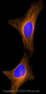 Immunocytochemistry/ Immunofluorescence - Goat polyclonal Secondary Antibody to Rabbit IgG - H&L (Alexa Fluor® 594), pre-adsorbed (ab150088)