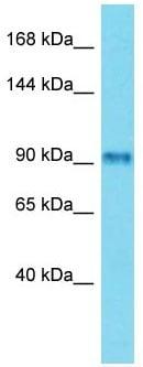 Western blot - Anti-FSIP2 antibody - C-terminal (ab150351)