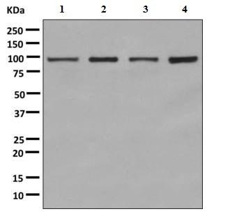 Western blot - Anti-ASCC2 antibody [EPR9773] (ab150368)