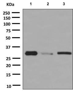 Western blot - Anti-Gemin 2 antibody [EPR10040(B)] (ab150383)