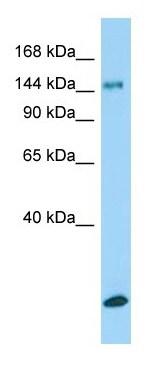 Western blot - Anti-Collagen XV alpha 1 antibody (ab150463)