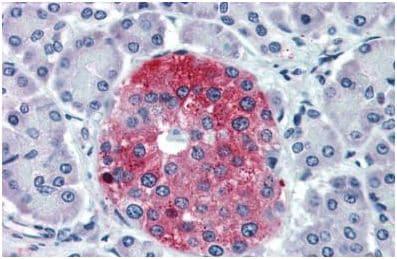 Immunohistochemistry (Formalin/PFA-fixed paraffin-embedded sections) - Anti-GPCR GPR102 antibody - N-terminal (ab150593)