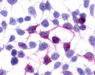 Immunocytochemistry - Anti-GPCR GPR45 antibody - Cytoplasmic domain (ab150645)