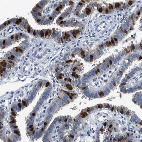 Immunohistochemistry (Formalin/PFA-fixed paraffin-embedded sections) - Anti-FADS6 antibody (ab150795)