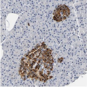 Immunohistochemistry (Formalin/PFA-fixed paraffin-embedded sections) - Anti-NESP55 antibody (ab150798)