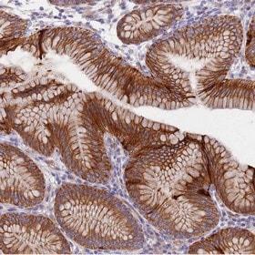 Immunohistochemistry (Formalin/PFA-fixed paraffin-embedded sections) - Anti-LAMB4 antibody (ab150802)