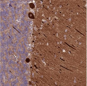 Immunohistochemistry (Formalin/PFA-fixed paraffin-embedded sections) - Anti-MRO antibody (ab150813)
