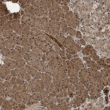 Immunohistochemistry (Formalin/PFA-fixed paraffin-embedded sections) - Anti-CATSPERB antibody (ab150837)