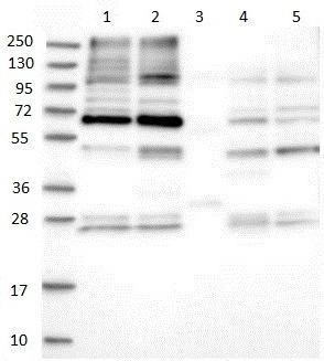 Western blot - Anti-SLC26A8 antibody (ab150846)