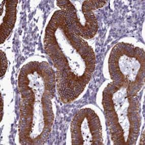 Immunohistochemistry (Formalin/PFA-fixed paraffin-embedded sections) - Anti-CCDC84 antibody (ab150860)