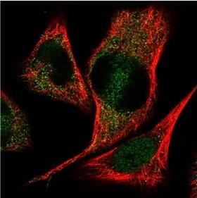 Immunocytochemistry/ Immunofluorescence - Anti-CCDC113 antibody (ab150866)