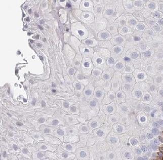 Immunohistochemistry (Formalin/PFA-fixed paraffin-embedded sections) - Anti-FAM86A antibody (ab150875)