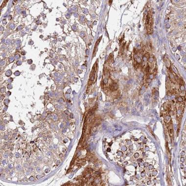 Immunohistochemistry (Formalin/PFA-fixed paraffin-embedded sections) - Anti-TMEM126A antibody (ab150954)