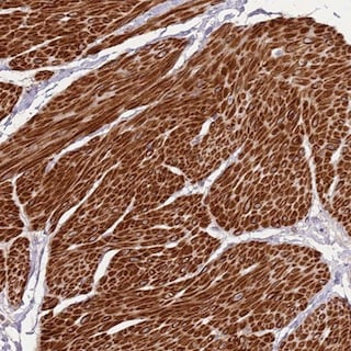 Immunohistochemistry (Formalin/PFA-fixed paraffin-embedded sections) - Anti-ADTRP antibody (ab151017)