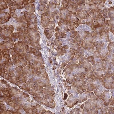 Immunohistochemistry (Formalin/PFA-fixed paraffin-embedded sections) - Anti-FRAT2 antibody (ab151073)