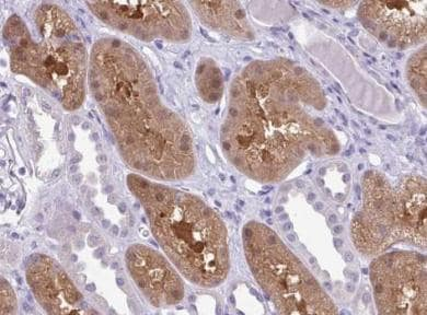 Immunohistochemistry (Formalin/PFA-fixed paraffin-embedded sections) - Anti-MDS2  antibody (ab151167)