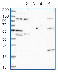 Western blot - Anti-ALG3 antibody (ab151211)