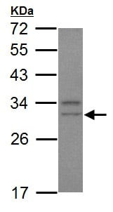 Western blot - Anti-Cdk5 antibody - C-terminal (ab151233)