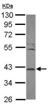 Western blot - Anti-LRRC23 antibody (ab151249)