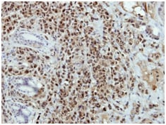 Immunohistochemistry (Formalin/PFA-fixed paraffin-embedded sections) - Anti-BRAF35 antibody (ab151286)
