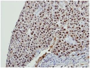Immunohistochemistry (Formalin/PFA-fixed paraffin-embedded sections) - Anti-BCAS2 antibody (ab151293)