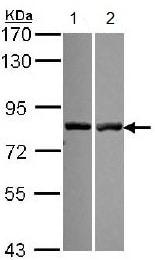 Western blot - Anti-Calpain 11 antibody (ab151324)