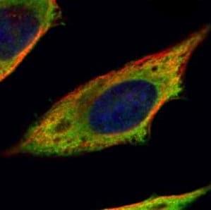 Immunocytochemistry/ Immunofluorescence - Anti-Calpain 11 antibody (ab151324)