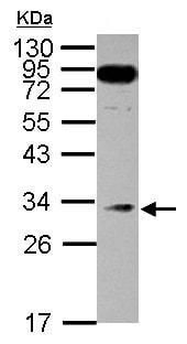 Western blot - Anti-MED8 antibody (ab151411)