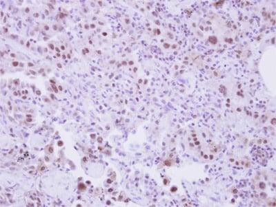 Immunohistochemistry (Formalin/PFA-fixed paraffin-embedded sections) - Anti-SLU7 antibody (ab151462)