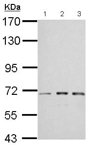 Western blot - Anti-IGF2BP2 antibody (ab151463)