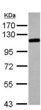 Western blot - Anti-alpha Adducin antibody (ab151471)