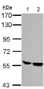 Western blot - Anti-HCLS1 antibody - C-terminal (ab151511)