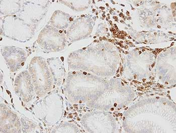 Immunohistochemistry (Formalin/PFA-fixed paraffin-embedded sections) - Anti-HCLS1 antibody - C-terminal (ab151511)
