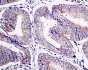 Immunohistochemistry (Formalin/PFA-fixed paraffin-embedded sections) - Anti-STAM2 antibody [EPR8688] (ab151545)